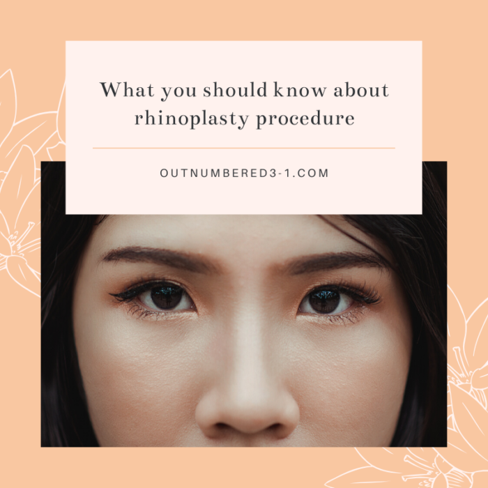 What You Should Know About Rhinoplasty Procedure